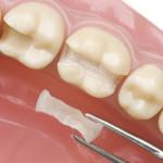 obturações dentais