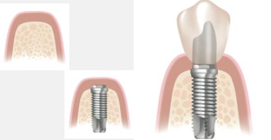 implantodontia-1